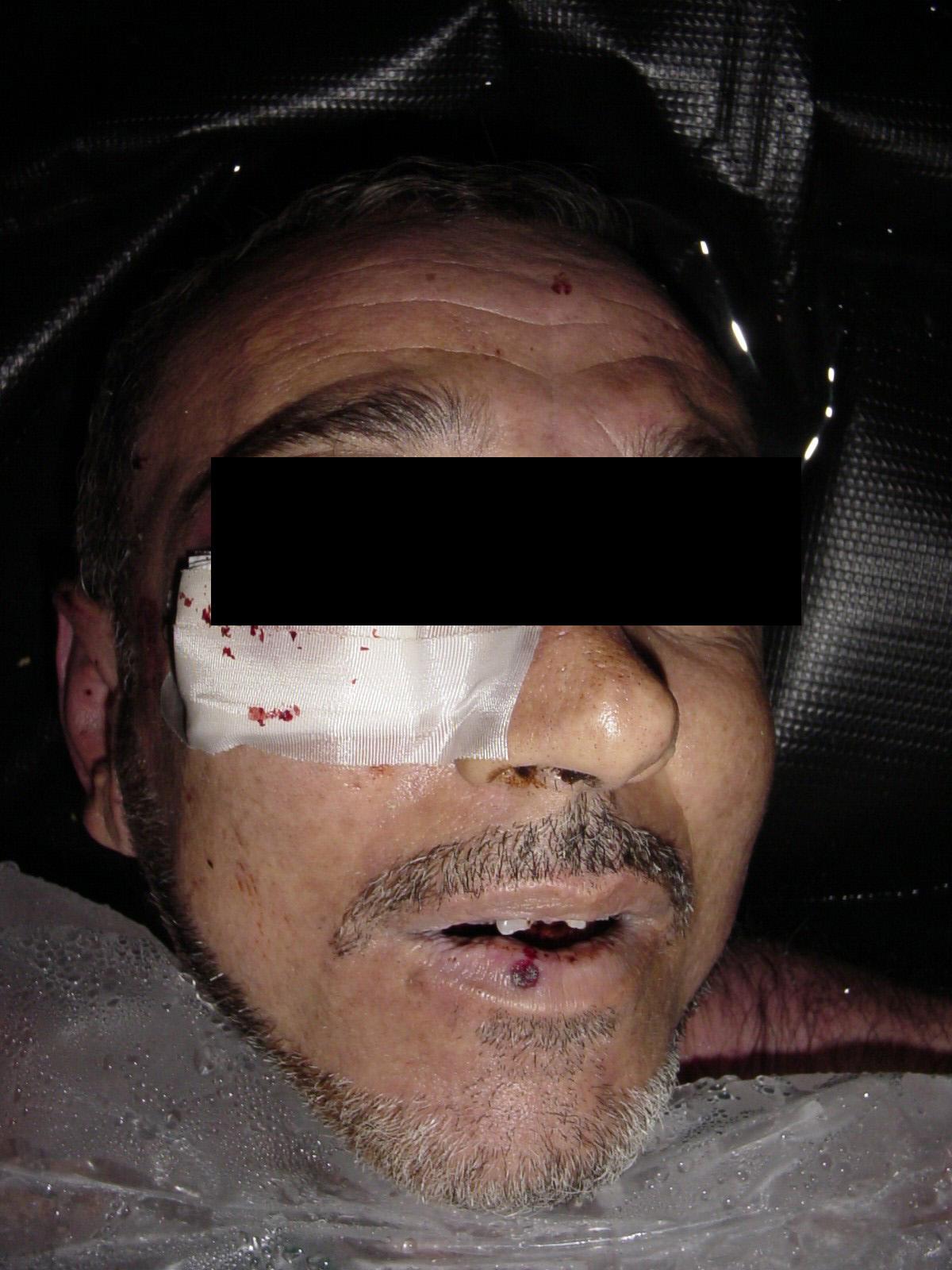 Dead Iraqi Manadel al-Jamadi